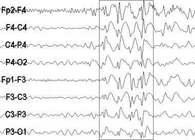 An electroencephalogram (EEG) recording from a pat