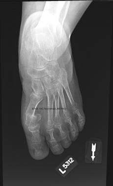 Anteroposterior radiograph at 3-month follow-up sh