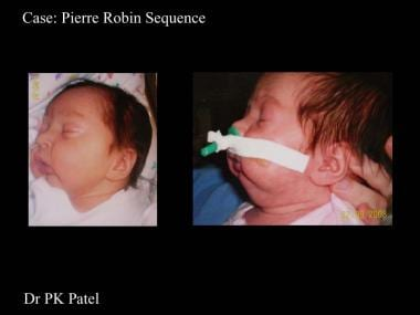 Infant with Pierre Robin sequence.