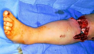 This photograph shows a complex degloving wound of