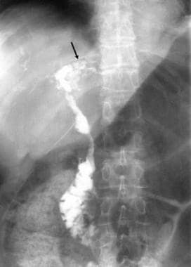 This T-tube cholangiogram shows an irregularity of