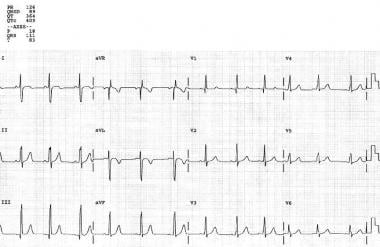 This is a typical preoperative electrocardiogram (