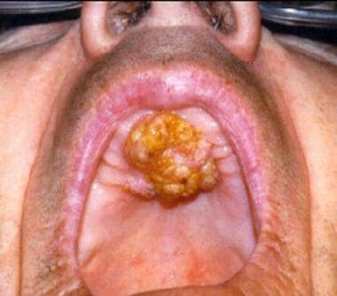 Squamous cell carcinoma of the hard palate.