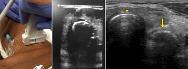 Left panel: Bedside ultrasound of anterior neck fo