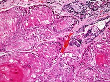 Squamous cell carcinoma of the prostate, with kera