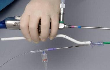The guidewire handle in position for manipulating