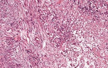This high-grade astrocytoma is characterized by sa