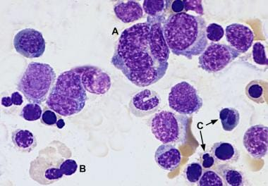 A = multinucleate erythroid precursor; B = binucle