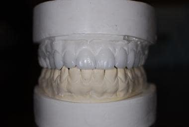Wax teeth planning (wax up) for planned veneers.