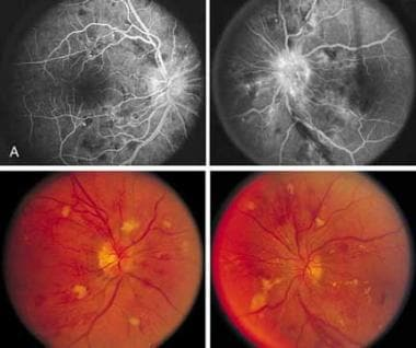 Hypertensive retinopathy. Note the flame-shaped he