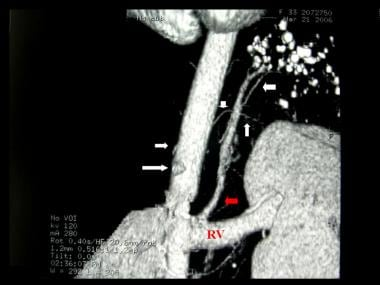 Contrast enhanced computed tomography angiogram in