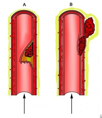 Arterial dissection. A, Tear and elevation of the