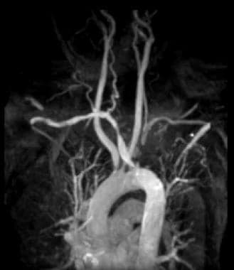 Gadolinium-enhanced magnetic resonance angiography