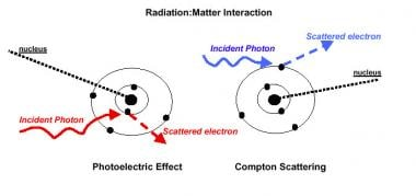 Radiation therapy, general principles. Interaction