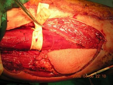 Skin paddle over the gracilis muscle is harvested