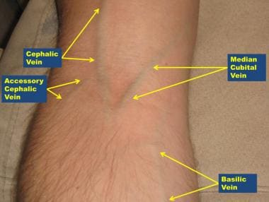 Antecubital veins, right arm.