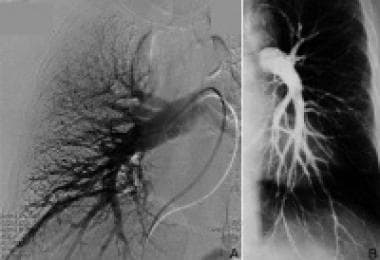Normal right (A) and left (B) pulmonary angiograms