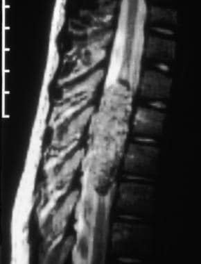 MRI of spinal vascular lesion. Courtesy of L. Cook
