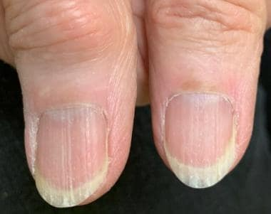 Brittle nail syndrome: Significant longitudinal ri