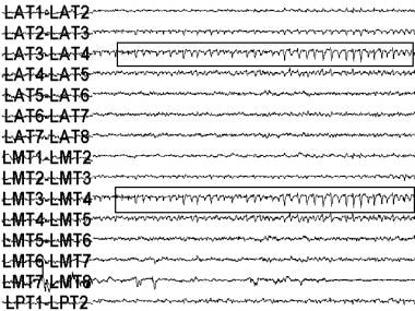 An electroencephalogram (EEG) recording of a seizu