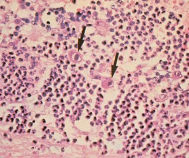Intranuclear inclusions (arrows) found in cytomega