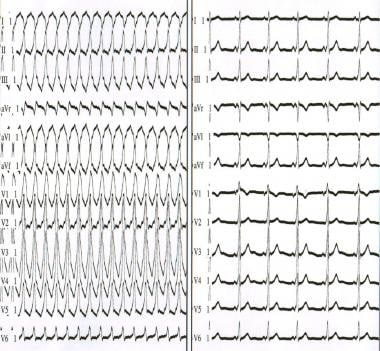 The left panel depicts antidromic atrioventricular
