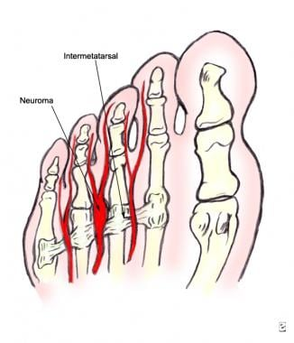 Plantar view showing the relationships between the