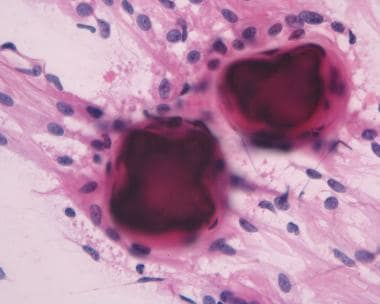 Image 6: Two psammoma bodies wrapped by neoplastic