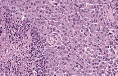This glioblastoma is composed of large epithelioid