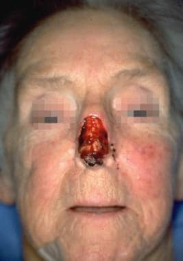 Case 7. Preoperative view of subtotal nasal skin d