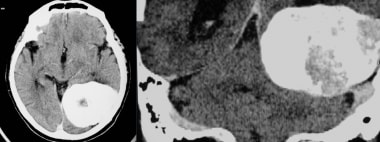 Transverse axial and coronal CT images show a larg