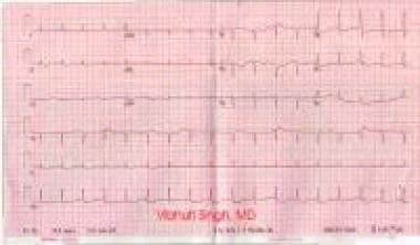 Effusion, pericardial. ECG showing low-voltage QRS
