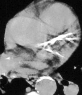 Helical non–contrast-enhanced CT reveals calcifica