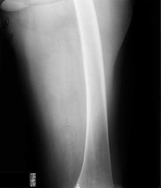 Radiograph demonstrates a soft tissue mass posteri