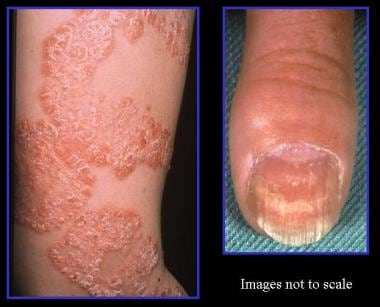 Left, typical appearance of psoriasis with silver
