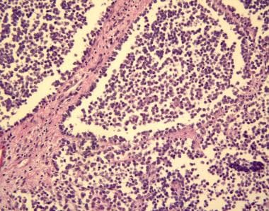 Alveolar rhabdomyosarcoma is evidenced by uniform