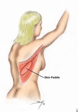 Outline of latissimus dorsi muscle and skin island