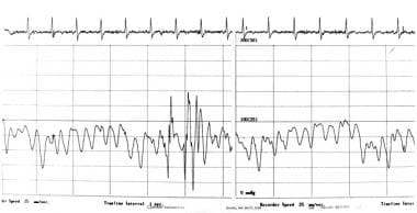 Right atrial pressure waveform of a patient with c