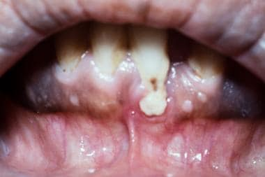 Gingival infiltration in a patient with acute myel