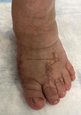 Clinical photograph showing correction of deformit
