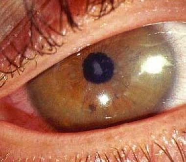 Macular dystrophy. Image courtesy of James J. Reid