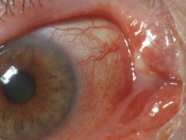 Canaliculitis of the right upper lid. Courtesy of