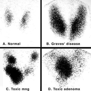 Iodine 123 (123I) nuclear scintigraphy: 123I scans