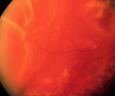 Retinal detachment due to peripheral tear in area
