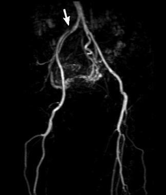 Moderate stenosis of the external iliac artery at