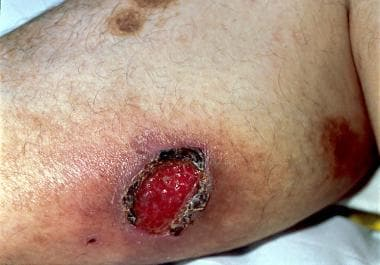 Cutaneous blastomycosis.