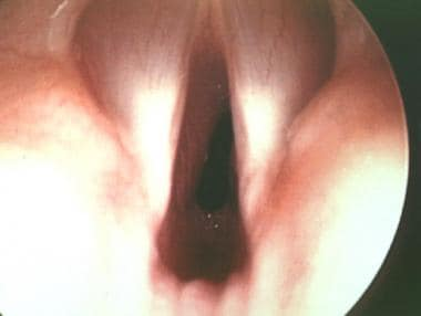 Endoscopic view of the true vocal cords in the for