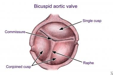 Bicuspid aortic valve with unequal cusp size. Note