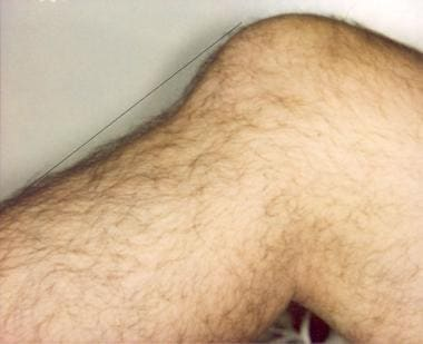 A close-up view of a posterior tibial sag with an