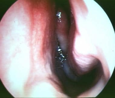 Rigid endoscopic view of the left nasal cavity, sh